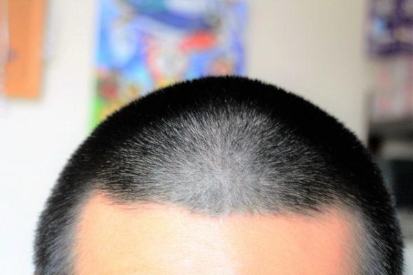 坊主 髪質