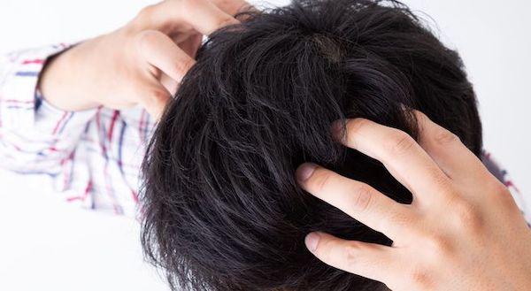 頭皮のツボと効果