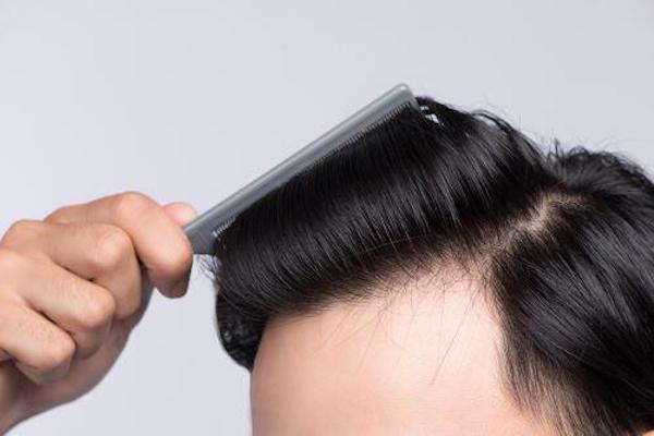 髪 ボリュームアップ