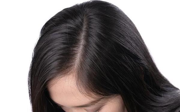 頭皮 乾燥 保湿 方法