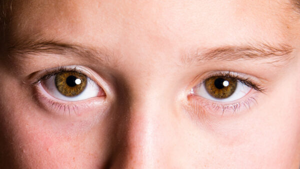 瞳メラニン
